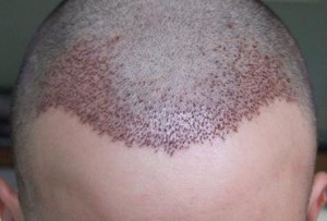Hair Transplantation at shubham skin clinic