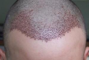 Hair Transplantation at shubham skin clinic
