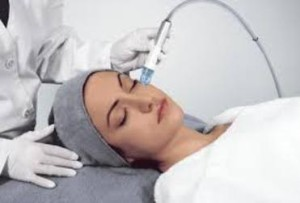 Microdermabrasion - skin polishing