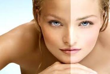 Fairness treatment at Shubham skin clinic