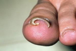 Nail Treatment near