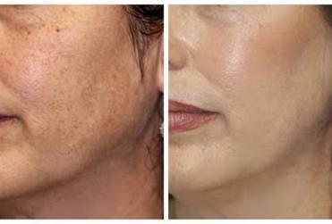 Cosmetic Treatment at Shubham skin clinic