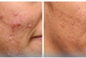 Pimples Treatment at Shubham skin clinic