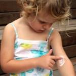 Skin Diseases in Children