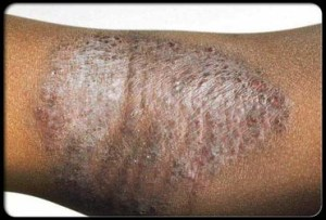 Eczema & Atopic Dermatitis Treatment