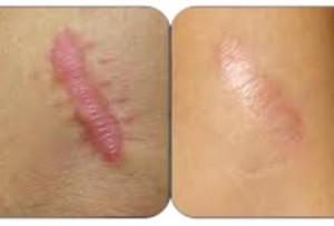 Treatment at Shubham skin clinic