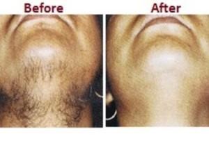 Laser Hair removal Pune Sinhagad