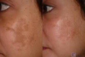Skin treatment at Shubham skin clinic